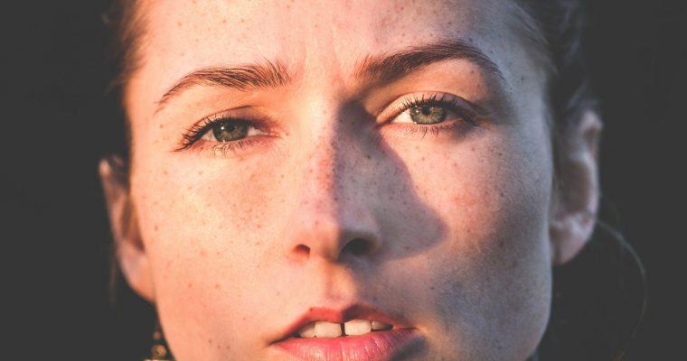 女性的雀斑激光可以有效解決